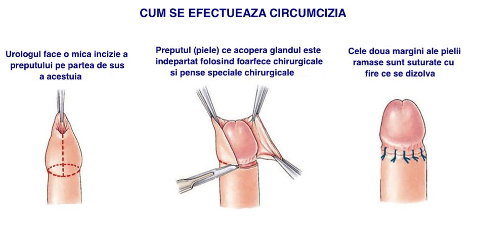 procedura penisului)
