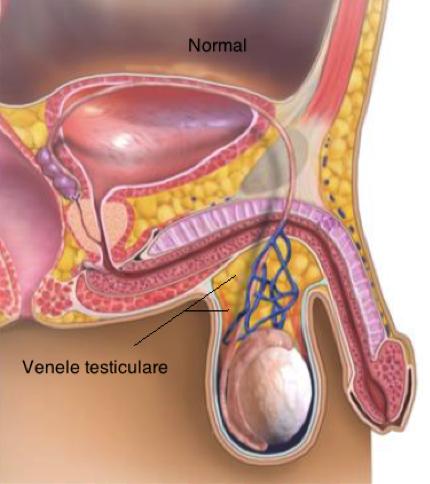 Varicocelul da tulburari de erectie si de fertilitate! - Farmacia Ta - Farmacia Ta